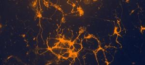 Visualisation des flux calciques dans une culture de neurones de la substance noire infectée avec un vecteur lentiviral pour l'expression spécifique d'un marqueur des flux calciques basé sur la eGFP (protéine bioluminescente sensible aux ions Calcium). Grâce à la détection de ces signaux bioluminescents, on peut visualiser des flux calciques simultanément dans un grand nombre de cellules permettant d'établir des corrélations spatiales entre les différents signaux calciques.