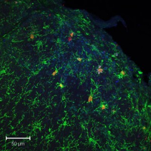 Inflammed microglia in the olfactory bulb