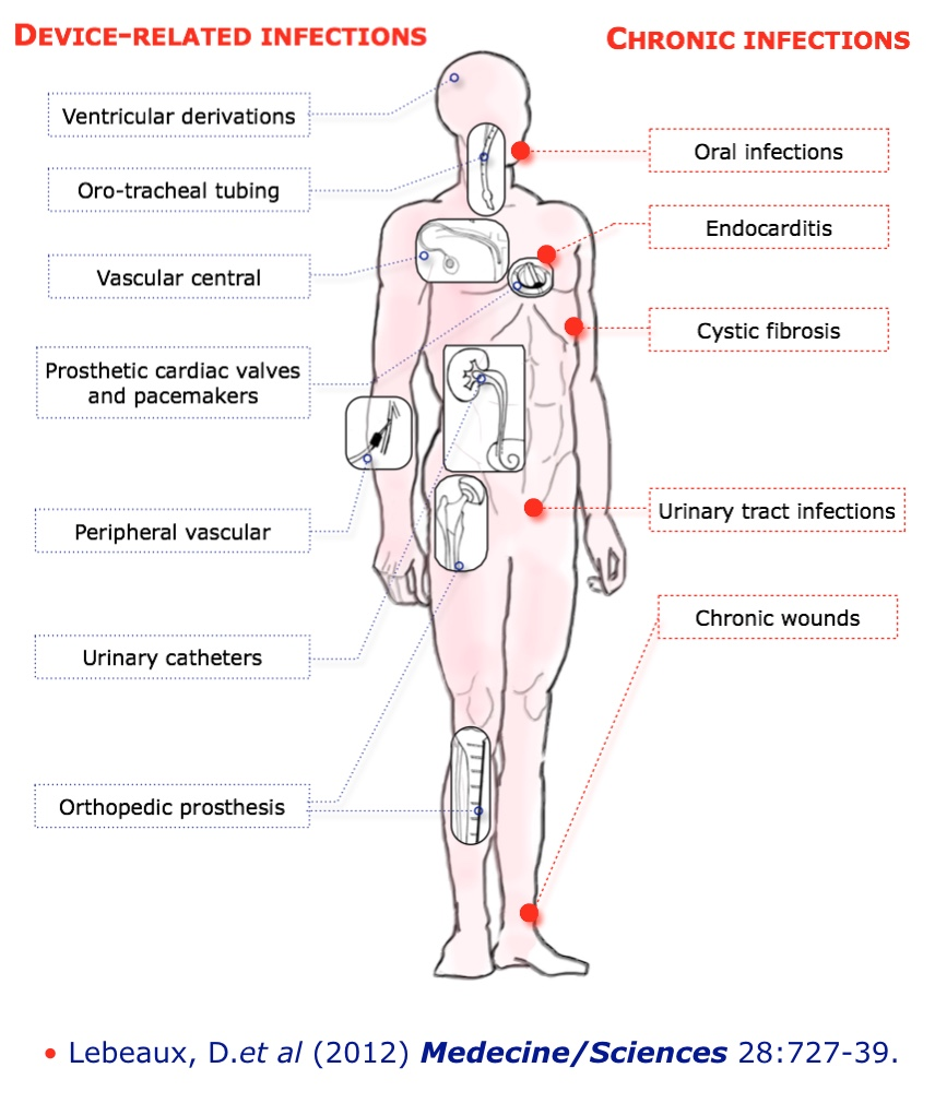 Biofilm Treatment Protocol