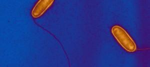 Legionella pneumophila et son flagelle, bactérie responsable de pneumopathie aigue grave. Bactérie de l'environnement , l'émergence récente de cette maladie s'explique par son affinité pour les systèmes modernes d'alimentation en eau comme les tours de refroidissement. Image colorisée.