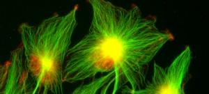 Marquage par immunofluorescence d'astrocytes tumoraux ou astrocytomes (lignée cellulaire humaine U373), montrant en rouge, APC et en vert, la tubuline des microtubules.  APC est un supresseur de tumeur qui est impliqué dans la polarisation des astrocytes normaux. La localisation d'APC est altérée dans des lignées de gliomes.  Pour essayer de corriger, les dérèglements observés lors de la migration des cellules d'astrocytes tumuraux ou gliomes on cherche à connaitre les mécanismes moléculaires fondamentaux qui controlent la polarisation et la migration cellulaire.