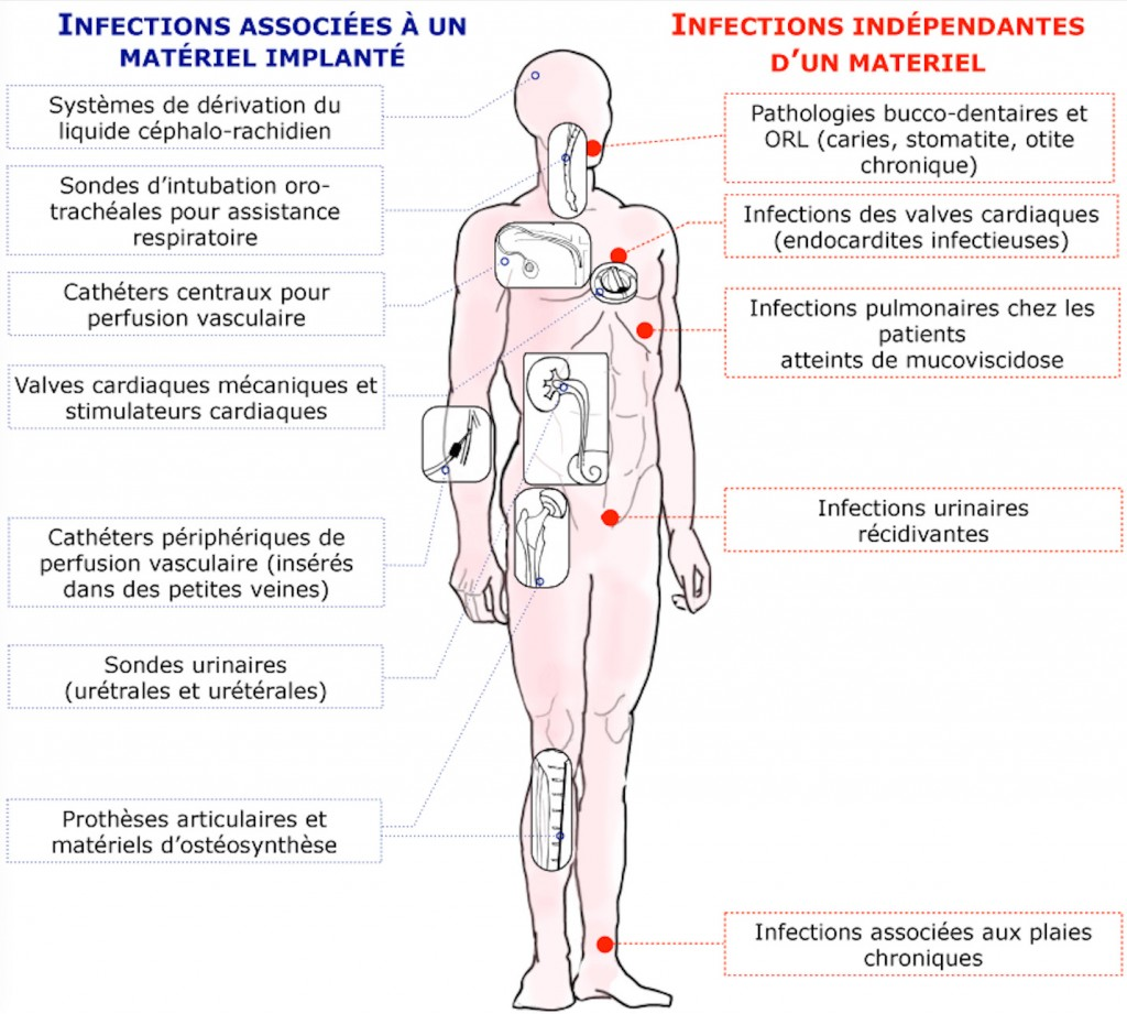 infectioncatheters