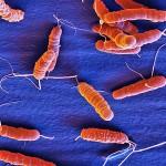 csm_Helicobacter_pylori_15kx3_01_d77ba0a768