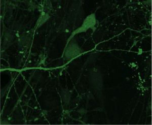 Human iPSC-derived neurons