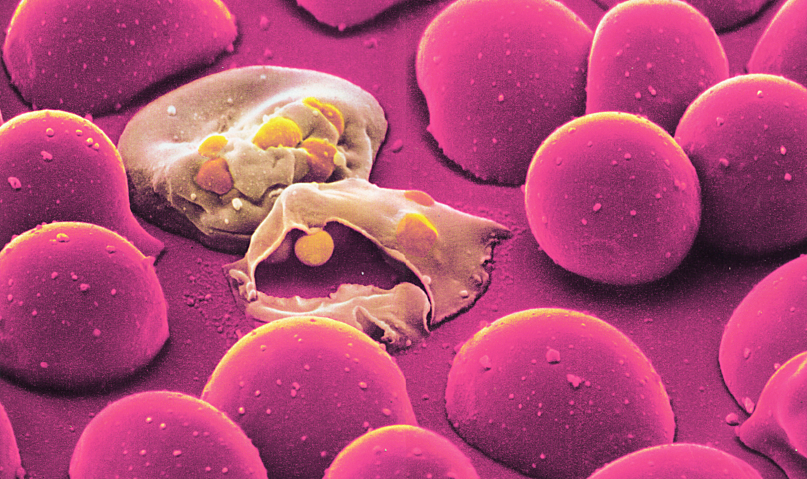 malaria is an infectious disease biology essay Plasmodium falciparum is a protozoan parasite that causes an infectious disease known as malaria p falciparum is the most severe strain of the malaria species.