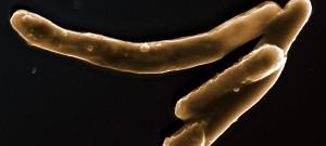 Mycobacterium tuberculosis, agent de la tuberculose, en microscopie électronique à balayage.Image colorisée.