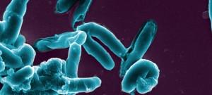 Mycobacterium tuberculosis, agent de la tuberculose, en microscopie électronique à balayage. Image colorisée