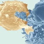 """Mise en évidence de structures de type """"biofilm """", formées par le rétrovirus HTLV-1 générés par des cellules infectées (cellules du haut), qui ont été transmis à un autre lymphocyte (cellule du bas). Micrographie en microscopie électronique à balayage. Image colorisée."""