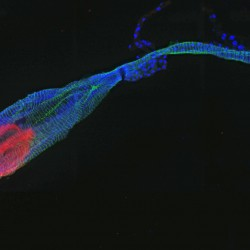 Mosquitoes were orally infected with the chikungunya virus. Midguts were dissected at day 5 post-infection, fixed and permeabilised. Virus is shown in red (anti-E2 protein, cyanine 3), the actin network in green (phalloidin 548) and nuclei in blue (DAPI).