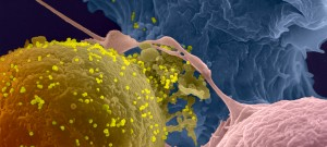 Transmission of HIV-1 from cell to cell. An HIV-1 infected lymphocyte (in pseudo-color yellow) in contact with non-infected lymphocyte (blue and pink). The viral particles are light yellow. Photo by scanning electron microscopy.