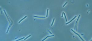 """Clostridium butyricum. Bactérie anaérobie formant des endospores fréquent dans l'environnement, les fromages et l'intestin de l'homme, pathogène occasionnel. Certaines souches neurotoxinogénes sont à l'origine d'entérocolites et de botulisme infantile par toxiinfection et de botulisme adulte par intoxination. """"Ferment butyrique"""" mis en évidence par Louis Pasteur, en 1861."""