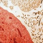 Culture de cellules infectées par le virus Ebola, virus isolé sur un malade de Côte d'Ivoire par Leguenno en 1995.  Virus de la famille des Filoviridae genre Filovirus. Réservoir naturel et mode de transmission inconnus. Infections secondaires par contact direct avec sang contaminé ou sécrétions corporelles. Mortalité dans 50 à 90% des cas. Soudan, République Démocratique du Congo, Côte d'Ivoire (Grossissement X 40000).
