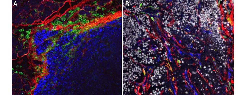 Stromal cells in tumors