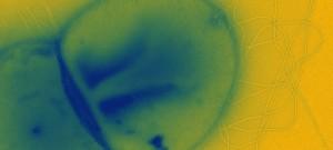 Electron micrograph of the hyperthermophilic archaea Sulfolobus islandicus strain LAL14/1.